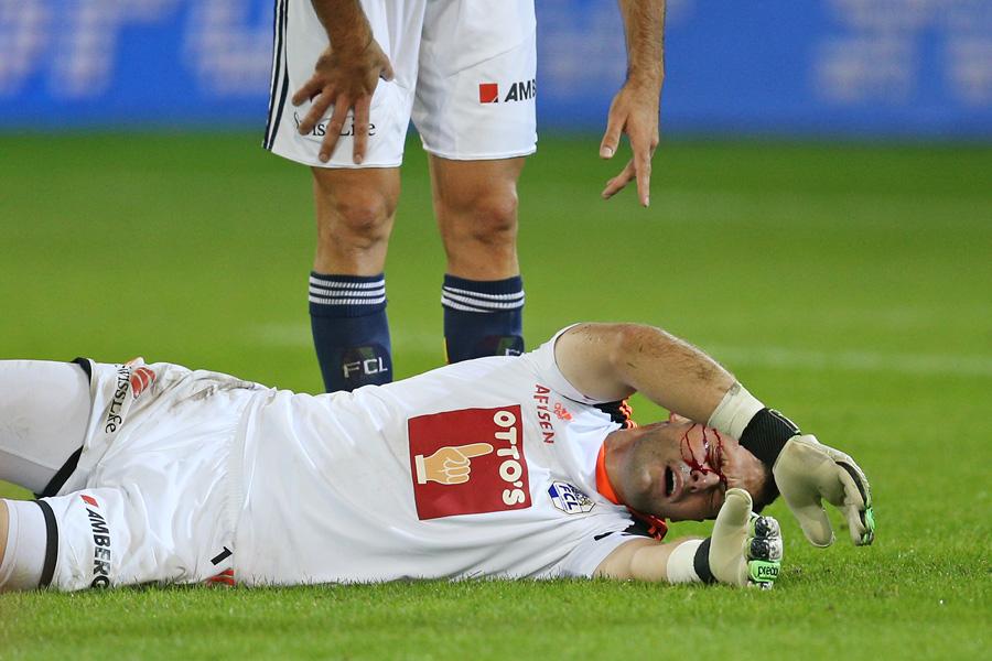 Luzerns David Zibung liegt nach einem Zusammenstoss blutend am Boden in der Super League Partie zwischen dem FC Luzern und GC ZŸrich am Mittwoch, 25. September 2013 in der Swissporarena Luzern.